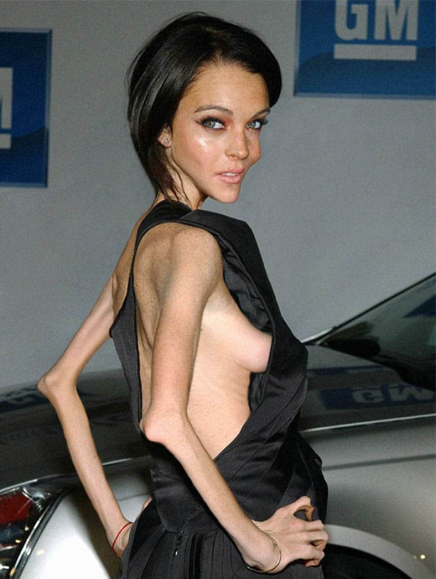 Anorexic-Celebrities-vinegret (5)