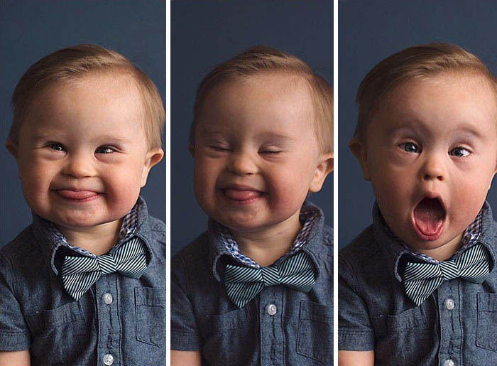 mom-fighting-son-down-syndrome-ad-campaign-asher-meagan-nash-vinegret-1