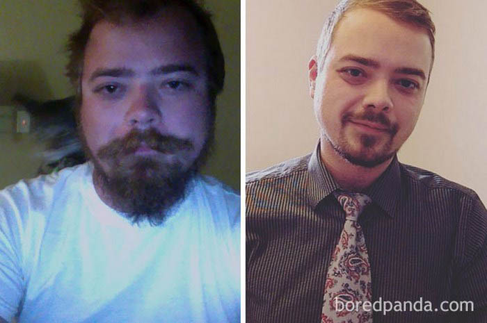 before-after-sobriety-photos-vinegret-1