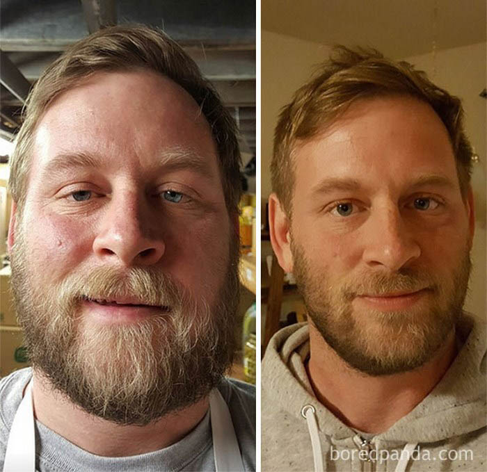 before-after-sobriety-photos-vinegret-6